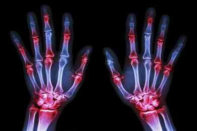۶ نکته درباره آرتریت روماتوئید