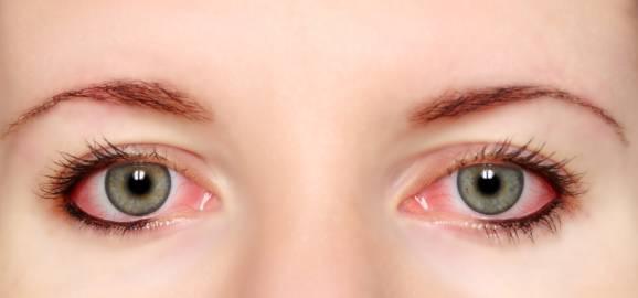 خوراکیهای مفید برای رفع قرمزی چشم