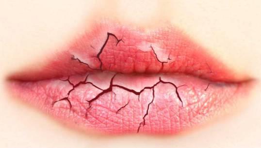 درمان خشکی بیش از حد دهان با طب سنتی